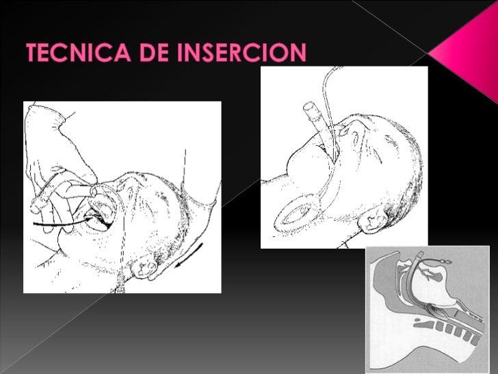 TECNICA DE INSERCION<br />