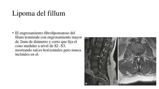 Disrafismos Espinal Abierto Y Oculto Medical definition of filum terminale: disrafismos espinal abierto y oculto