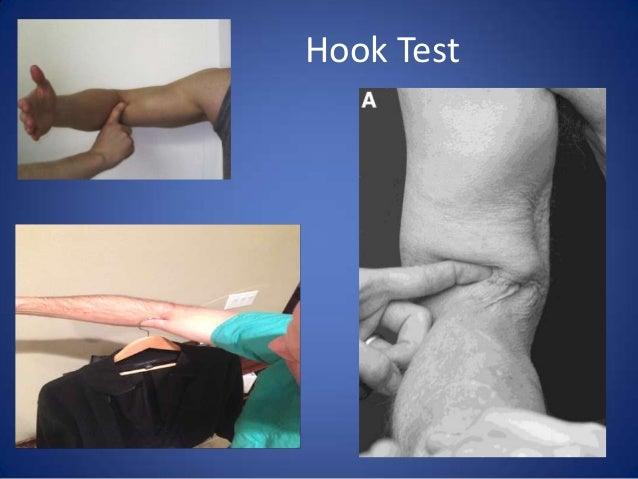 Hook up test