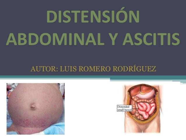 DISTENSIÓN ABDOMINAL Y ASCITIS AUTOR: LUIS ROMERO RODRÍGUEZ