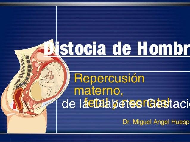 Distocia de Hombr    Repercusión    materno,      fetal y neonatal  de la Diabetes Gestacio            Dr. Miguel Angel Hu...
