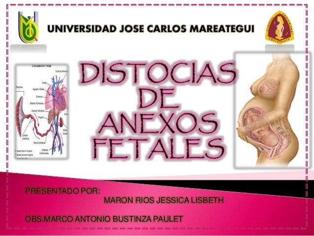 PRESENTADO POR: MARON RIOS JESSICA LISBETH OBS.MARCO ANTONIO BUSTINZA PAULET