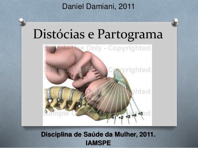 Daniel Damiani, 2011  Distócias e Partograma  Disciplina de Saúde da Mulher, 2011.  IAMSPE