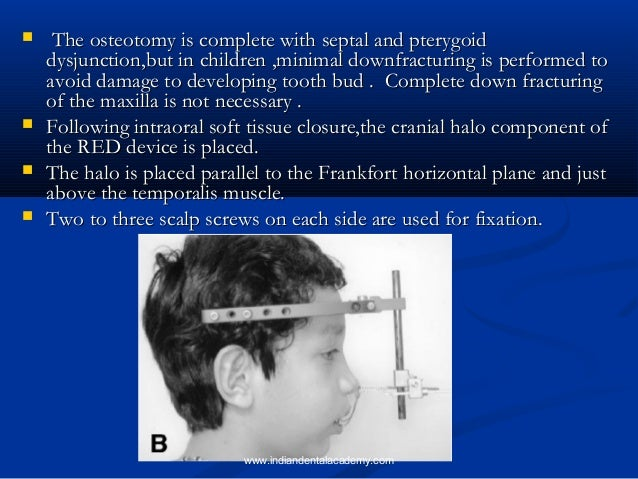 Distraction osteogenesis for correcting skeletal dysplasia