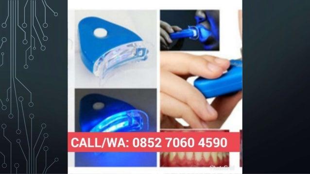 Termurah Harga Grosir Wa 0852 7060 4590 Obat Gigi Biar Putih