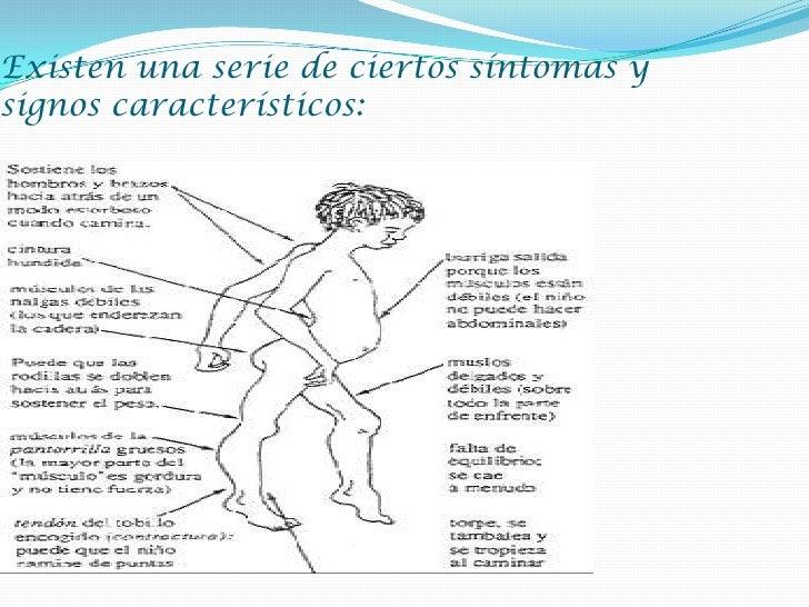Distrofia muscular de duchenne (dmd)