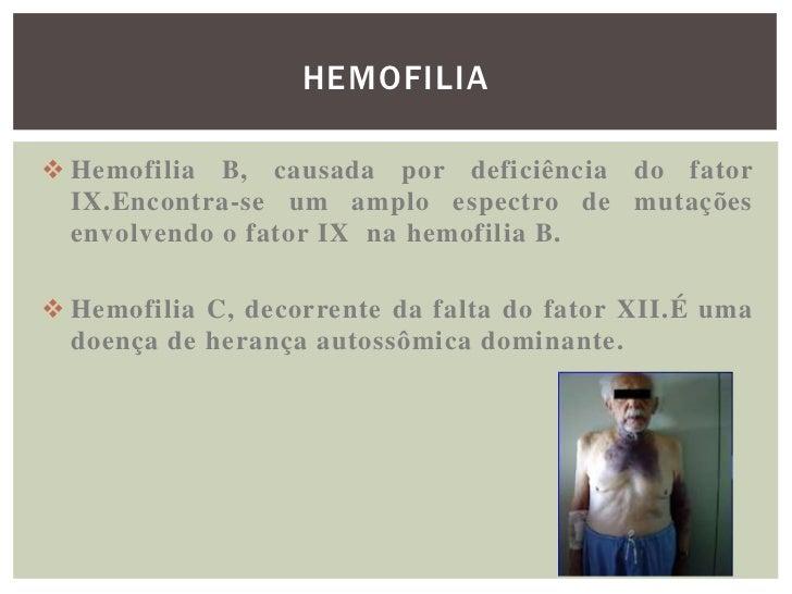 HEMOFILIA Hemofilia B, causada por deficiência do fator  IX.Encontra-se um amplo espectro de mutações  envolvendo o fator...