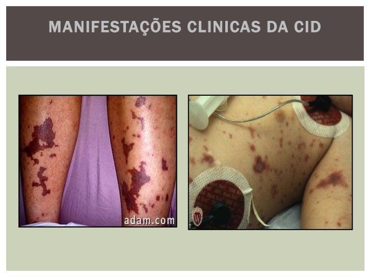 MANIFESTAÇÕES CLINICAS DA CIDA– Foco de fratura de costela (seta vazada) e exsudato purulento proveniente do flegmão no lo...