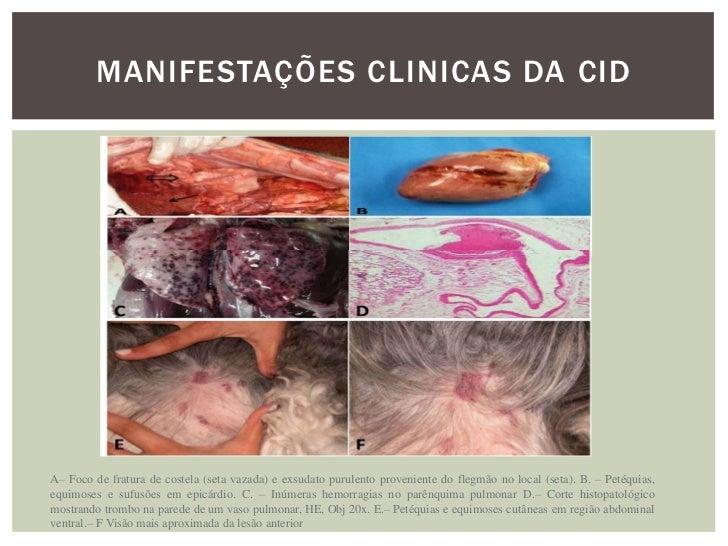 MANIFESTAÇÕES CLINICAS DA CIDORGÃO            ISQUÉMICO            HEMOR.Pele             Pur. fulminante      Petéquias  ...