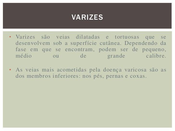 VARIZES PRIMÁRIAS Existem dois tipos de varizes : as chamadas primárias,  que aparecem influenciadas pela tendência hered...