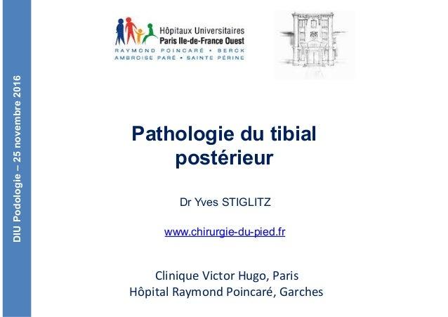 DIUPodologie–25novembre2016 CliniqueVictorHugo,Paris HôpitalRaymondPoincaré,Garches Pathologie du tibial postérieur...
