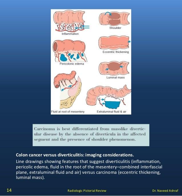 Diverticular Disease V S Carcinoma