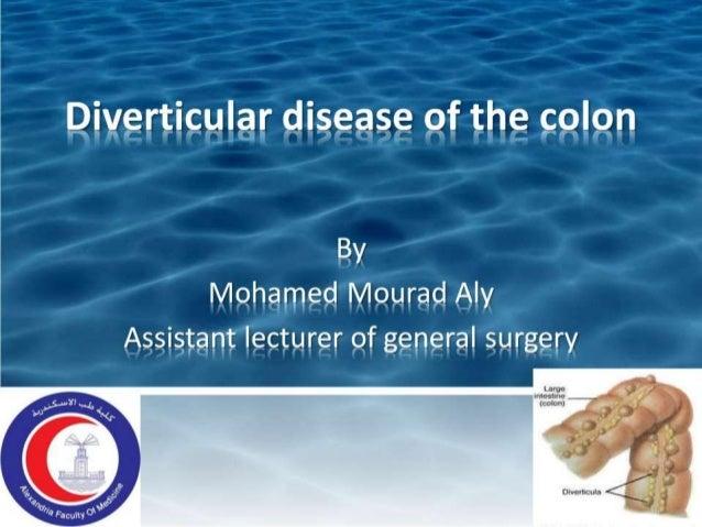 Divertieular disease of the colon  By Mehameel Meurad Alv Assistant lecturer ef general surgerv