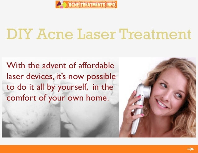 DIY Acne Laser TreatmentWith the advent of affordablelaser devices, it's now possibleto do it all by yourself, in thecomfo...