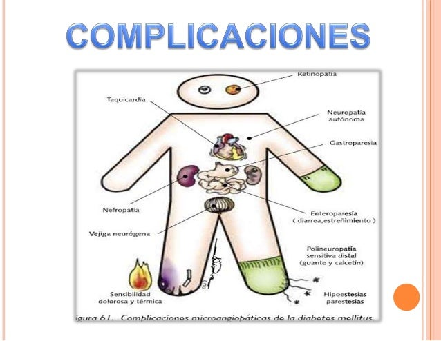 Complicaciones diabetes mellitus tipo 2 e hipertension arteria