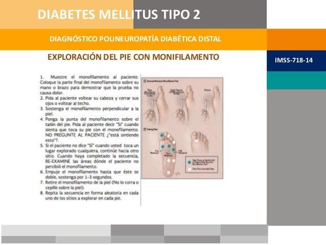EXPLORACIÓN DEL PIE CON MONIFILAMENTO DIAGNÓSTICO POLINEUROPATÍA DIABÉTICA DISTAL DIABETES MELLITUS TIPO 2 IMSS-718-14