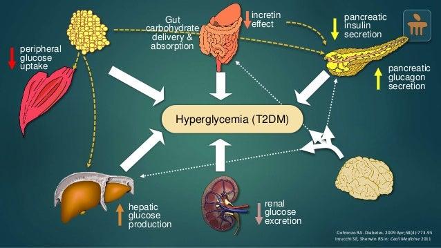 Type 2 Diabetes Mellitus - Pathophysiology