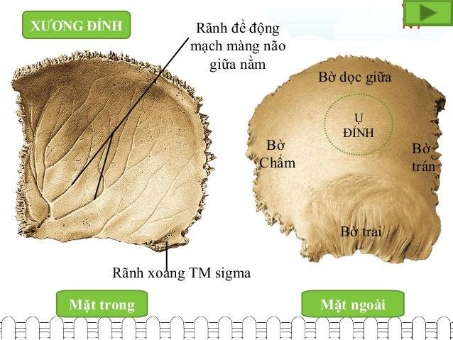 Viet NT Mặt trong Mặt ngoài Rãnh để động mạch màng não giữa nằm Rãnh xoang TM sigma Bờ trai Bờ Chẩm Bờ dọc giữa Bờ trán Ụ ...