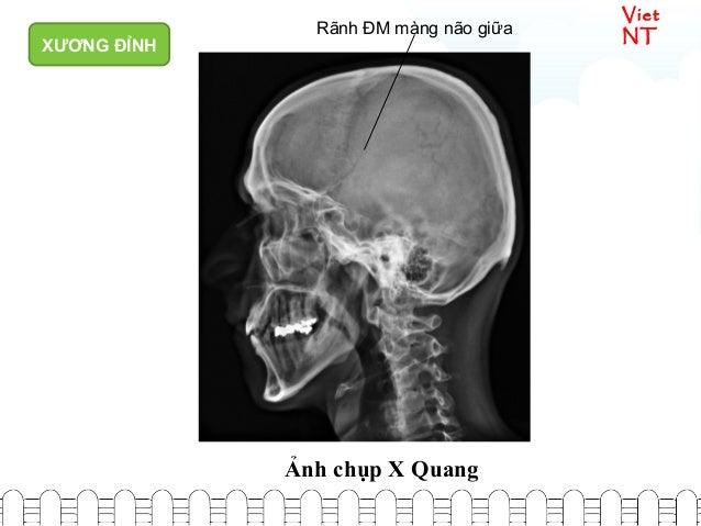 Viet NTRãnh ĐM màng não giữa Ảnh chụp X Quang XƯƠNG ĐỈNH