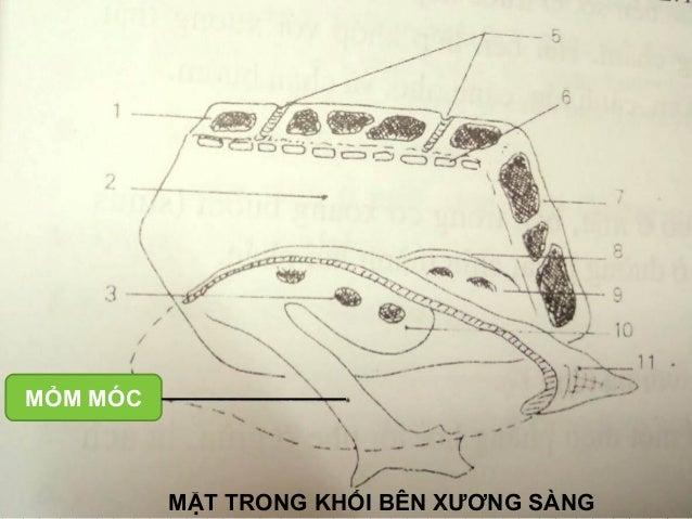 Viet NT MỎM MÓC MẶT TRONG KHỐI BÊN XƯƠNG SÀNG