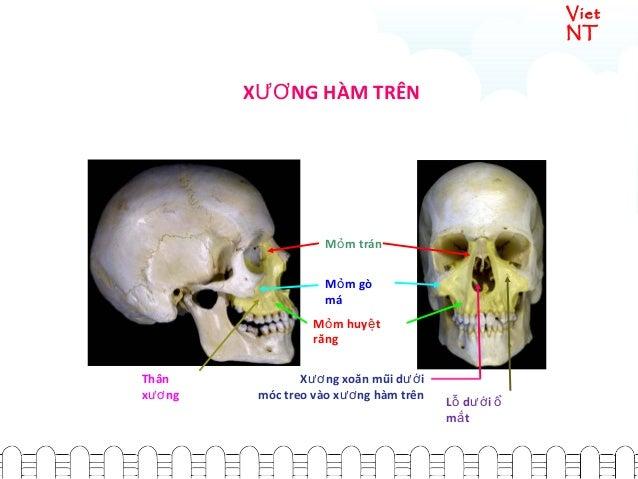 Viet NT X NG HÀM TRÊNƯƠ M m tránỏ L d iỗ ướ ổ m tắ X ng xoăn mũi d iươ ướ móc treo vào x ng hàm trênươ M m gòỏ má M m huy ...