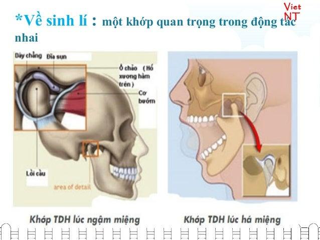 Viet NT *Về bệnh lí: th ng hay x y ra sai kh p g i làườ ả ớ ọ sái quai hàm, hay viêm kh p.ớ