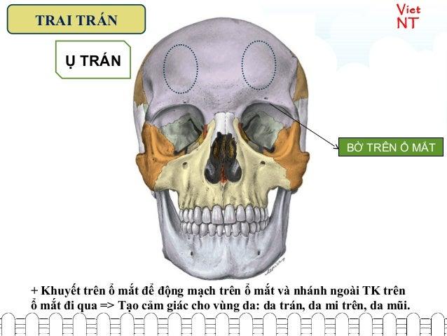 Viet NTTRAI TRÁN Ụ TRÁN BỜ TRÊN Ổ MẮT + Khuyết trên ổ mắt để động mạch trên ổ mắt và nhánh ngoài TK trên ổ mắt đi qua => T...
