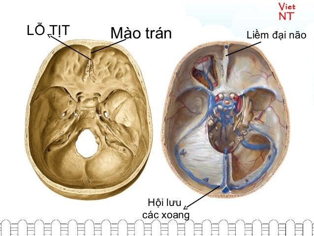 Viet NT Liềm đại nãoMào tránLỖ TỊT Hội lưu các xoang