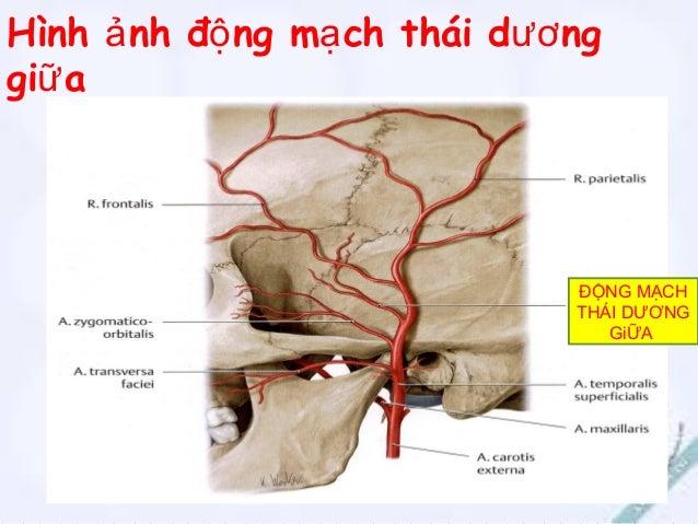 Viet NT Bạch huyếtBạch huyết Bạch huyết khớp thái dương – hàm dưới đổ vào các hạch bạch huyết mang tai