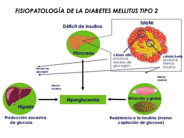 Diabetes Tipo 1 Fisiopatologia