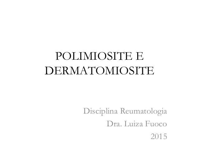 POLIMIOSITE E DERMATOMIOSITE Disciplina Reumatologia Dra. Luiza Fuoco 2015