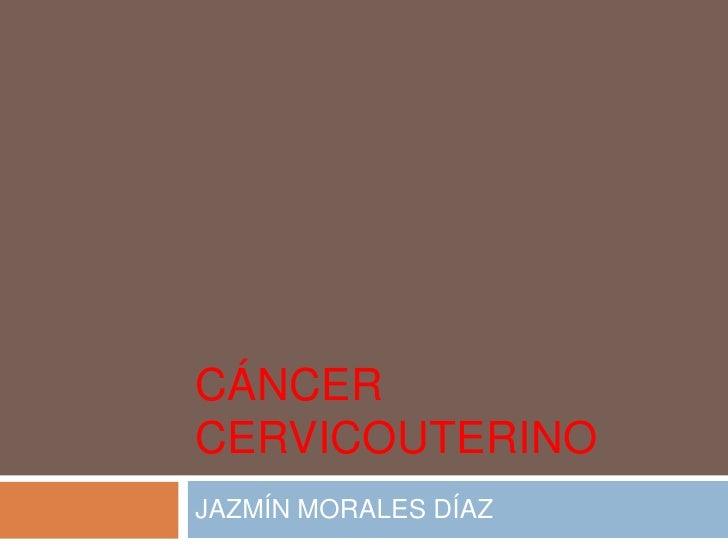 CÁNCER CERVICOUTERINO<br />JAZMÍN MORALES DÍAZ<br />