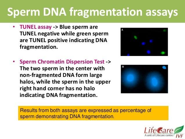 Sperm assay test