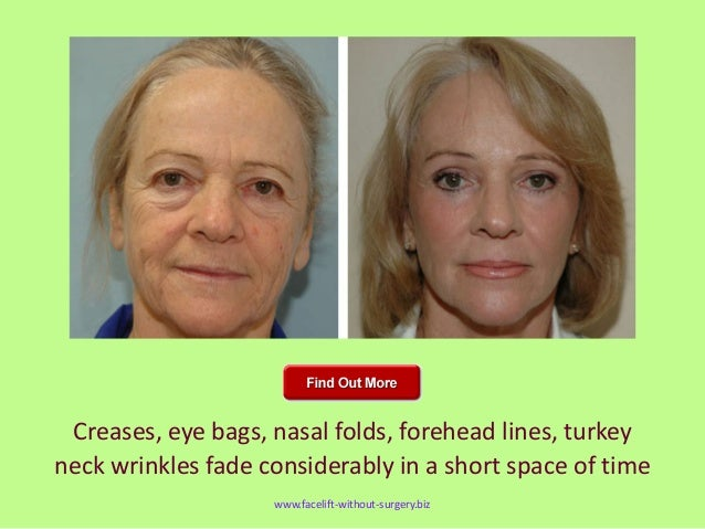 peachy appearance wwwfacelift without surgerybiz 14