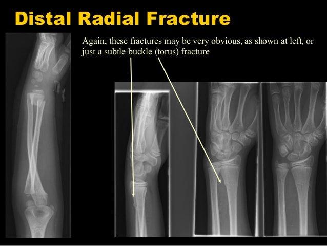 원위 요골 골절Distal radius fracture 중년 여성이 팔을 짚으면서 넘어지면서 손목 통증이 생겼어요 손목 손 통증 이야기