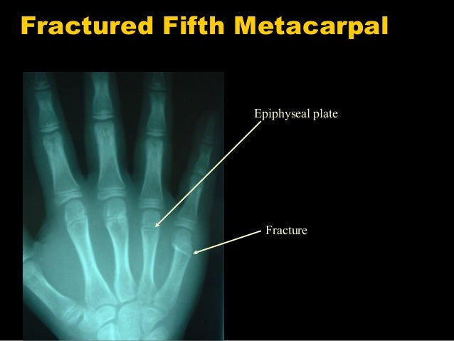 Do it yourself paeds ortho paediatric orthopaedics for beginners fracture 27 solutioingenieria Images