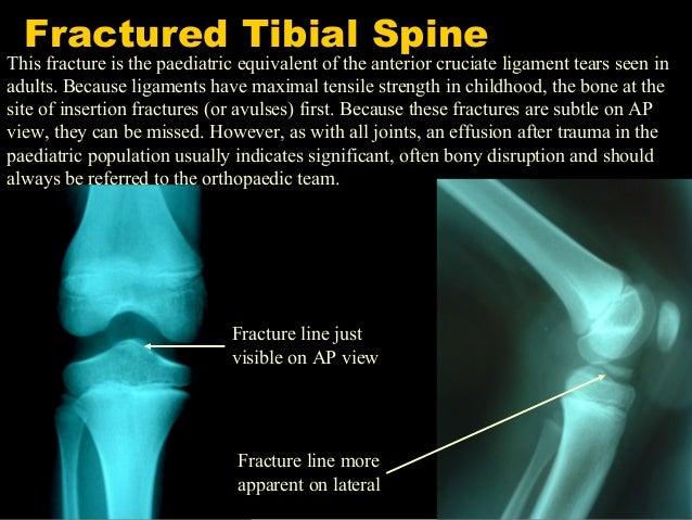 Do it yourself paeds ortho paediatric orthopaedics for beginners 33 solutioingenieria Images