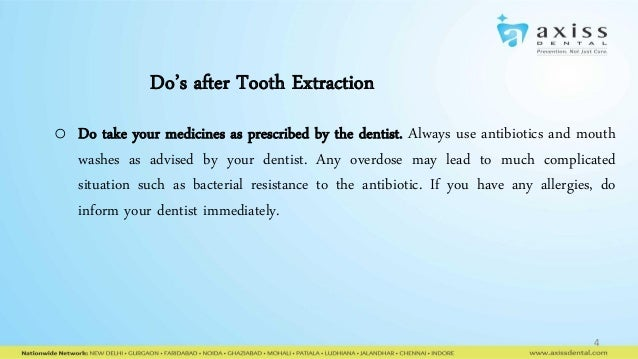 Do And Donts After Tooth Extraction