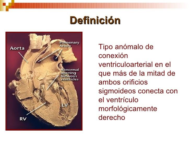 Doble vía de salida del ventrículo derecho