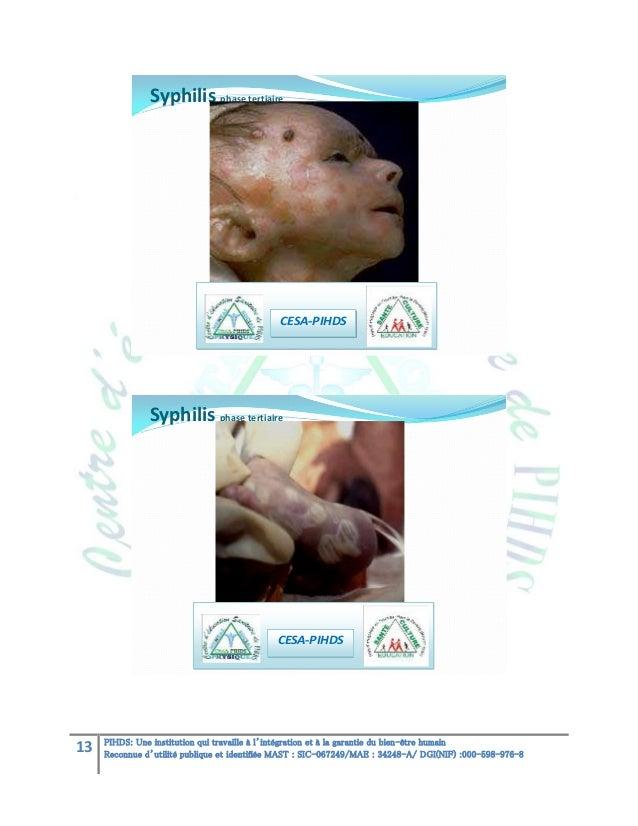 Syphilis phase tertiaire  CESA-PIHDS  Syphilis phase tertiaire  CESA-PIHDS  13  PIHDS: Une institution qui travaille à l'i...