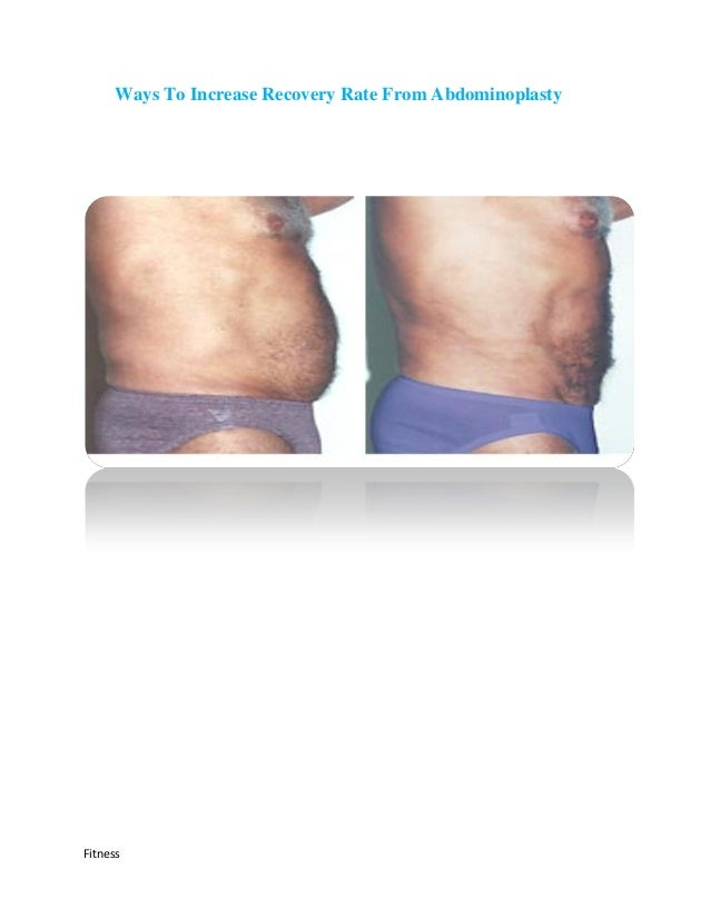 Ways To Increase Recovery Rate From AbdominoplastyFitness