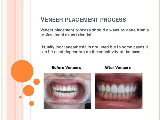 the process of placing dental veneers
