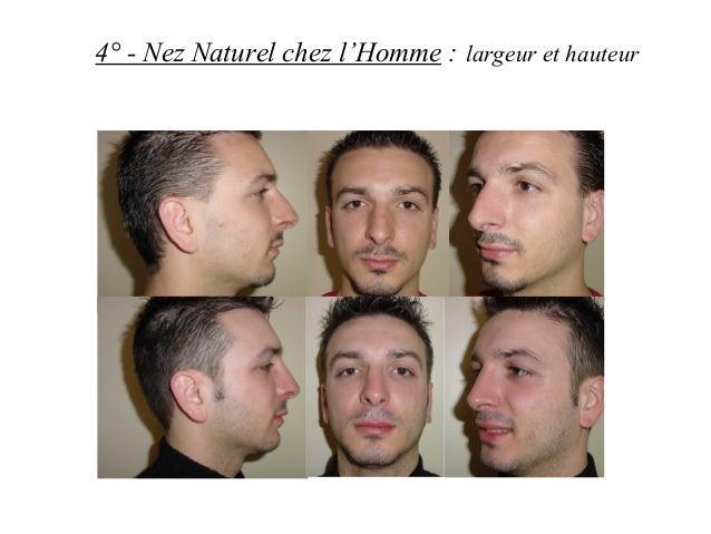 4° - Nez Naturel chez l'Homme : largeur et hauteur