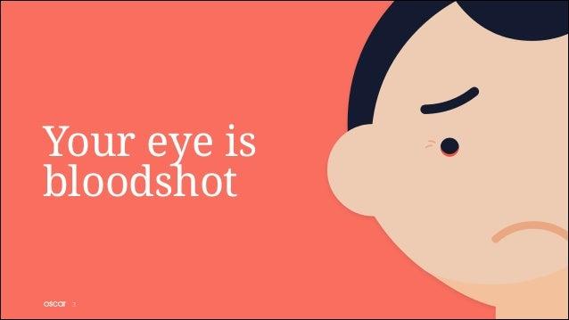 Your eye is bloodshot !3