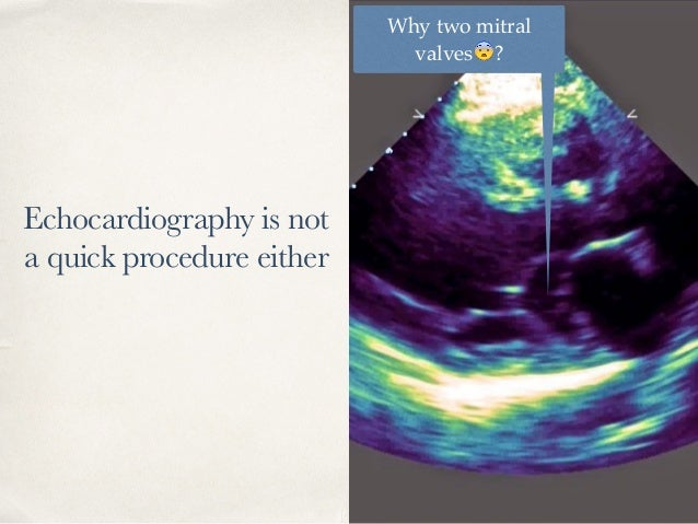 Echocardiography is not a quick procedure either Why two mitral valves 😨?