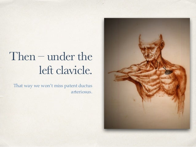 Then – under the left clavicle. That way we won't miss patent ductus arteriosus.
