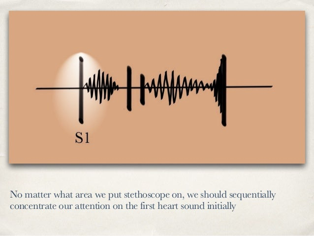 No matter what area we put stethoscope on, we should sequentially concentrate our attention on the first heart sound initi...