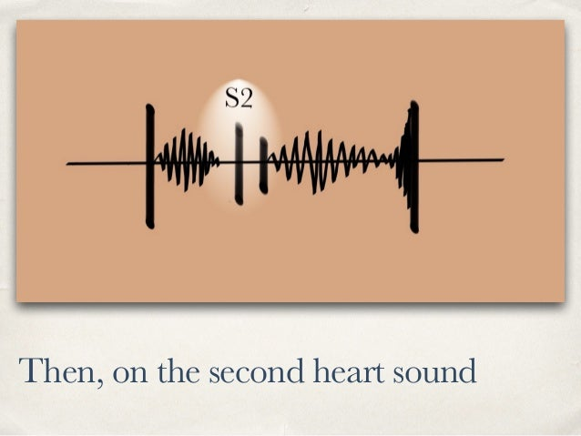 Then, on the second heart sound