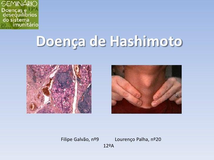 Doença de Hashimoto<br />    Filipe Galvão, nº9             Lourenço Palha, nº20<br />12ºA<br />