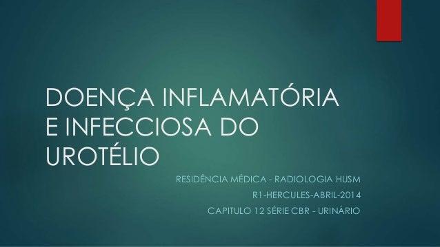 DOENÇA INFLAMATÓRIA E INFECCIOSA DO UROTÉLIO RESIDÊNCIA MÉDICA - RADIOLOGIA HUSM R1-HERCULES-ABRIL-2014 CAPITULO 12 SÉRIE ...
